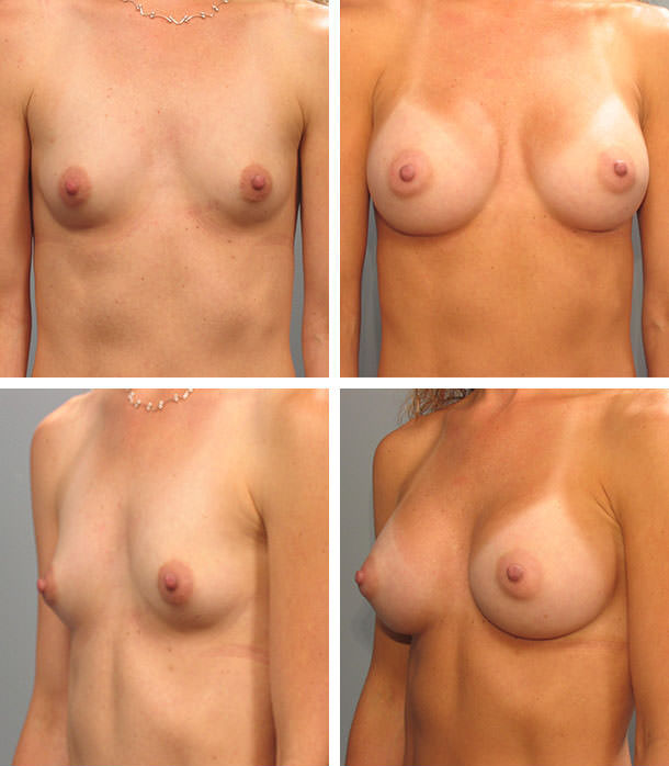 Sorry, Vinings breast augmentation surgeon congratulate