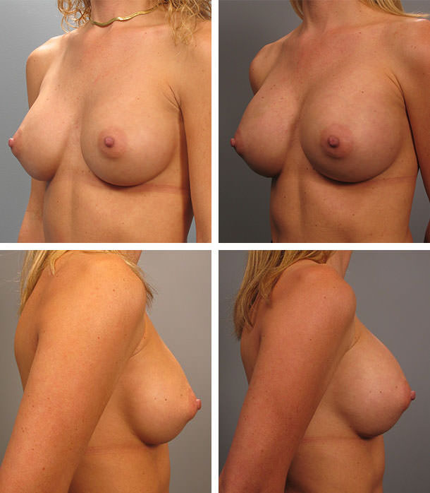 Agree, Vinings breast augmentation surgeon for that