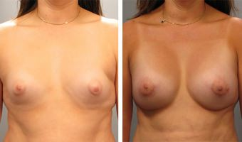 Atlanta Breast Augmentation Patient