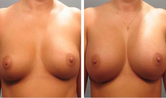 Patient before & after breast augmentation in Atlanta
