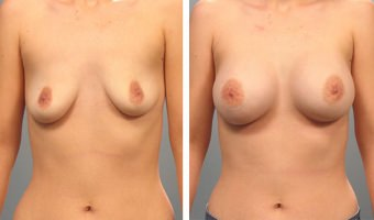 Breast Augmentation Results - Atlanta