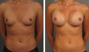 Breast Augmentation Patient in Atlanta
