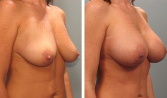 breast-augmentation-15