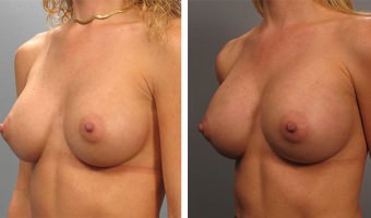 breast-augmentation-20
