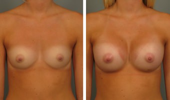 breast-augmentation-24