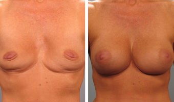 breast-augmentation-26