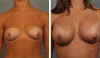 breast-augmentation-27