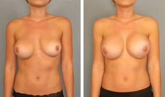 breast-augmentation-28