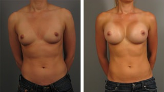 breast-augmentation-31