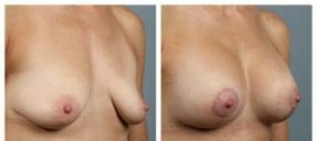 breast-augmentation-32