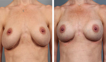breast-revision-1