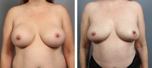 breast-implant-removal-11