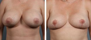 breast-implant-removal-13
