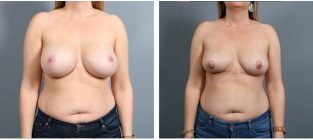breast-implant-removal-14