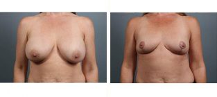 breast-implant-removal-15