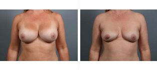breast-implant-removal-8