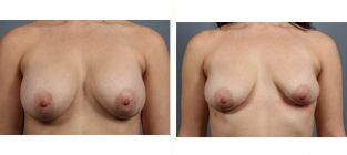 breast-implant-removal-9