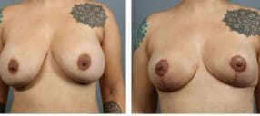 breast-revision-7