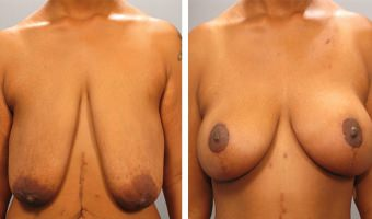 breast-lift-breast-augmentation-01