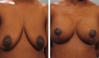 breast-lift-breast-augmentation-06