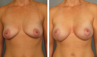 breast-lift-breast-augmentation-07
