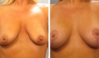 breast-lift-breast-augmentation-08