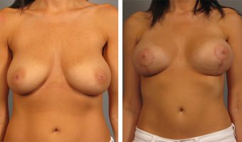 breast-lift-breast-augmentation-09