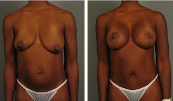 breast-lift-breast-augmentation-10