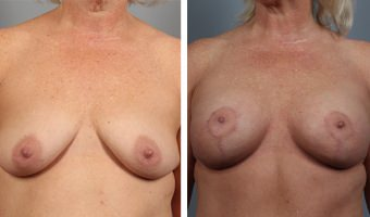 breast-lift-breast-augmentation-13