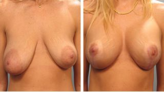breast-lift-breast-augmentation-04