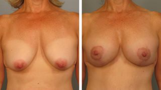 breast-lift-breast-augmentation-11