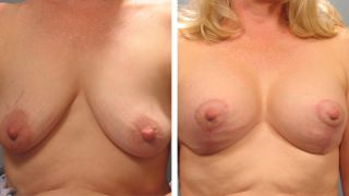 breast-lift-breast-augmentation-12