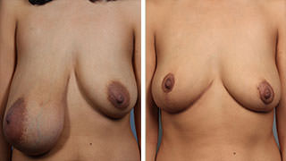 Patient Before & After Breast Lift
