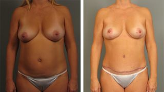 Atlanta Breast Lift Patient