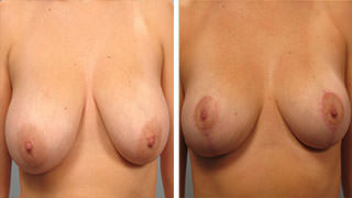 Breast Lift Atlanta