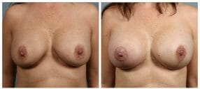 breast-recon-4