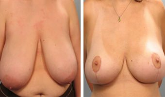 breast-reduction-01