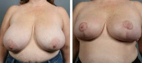 breast-reduct-10