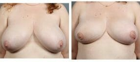 breast-reduct-6