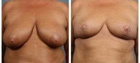 breast-reduct-7