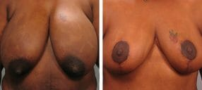 Patient before and after breast reduction Atlantla