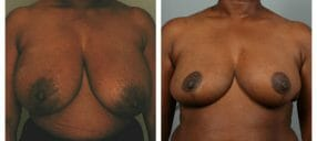 Atlanta Breast Reduction Patient