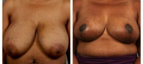 Breast reduction in Atlanta