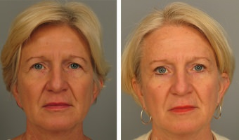 Patient Before & After Brow Lift in Atlanta