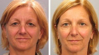 Atlanta Brow Lift Patient