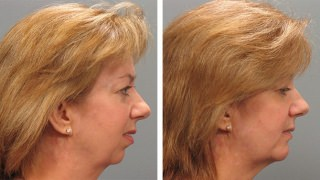 Atlanta Chin Augmentation Patient