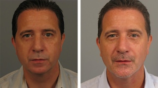 Male Chin Augmentation Patient in Atlanta