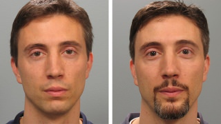 Male Patient Before & After Chin Augmentation in Atlanta