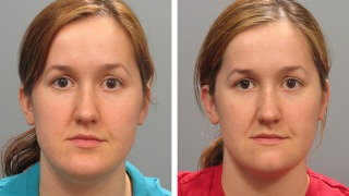 Female patient before & after chin augmentation in Atlanta