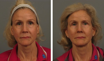Atlanta eyelid surgery patient – before & after